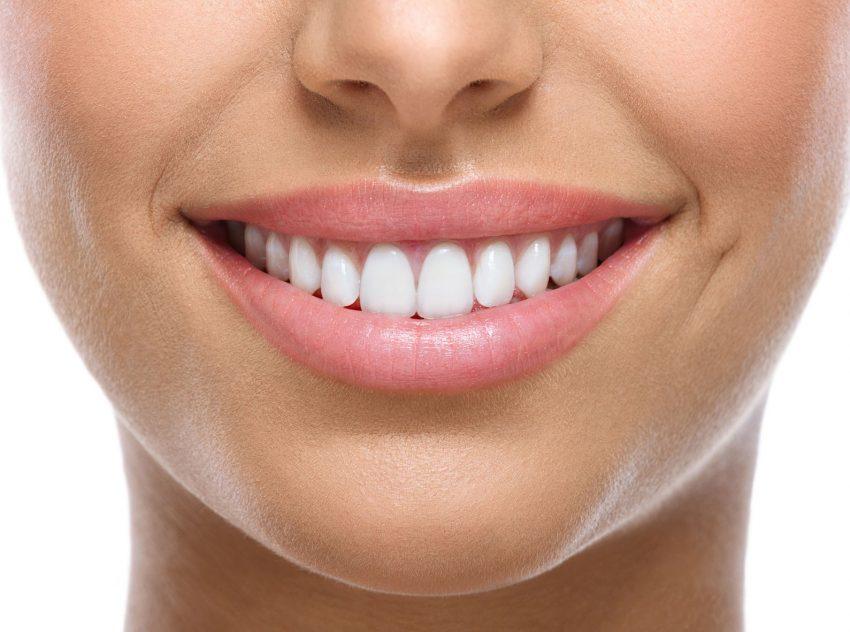 Fatetele dentare, pasul catre zambetul perfect