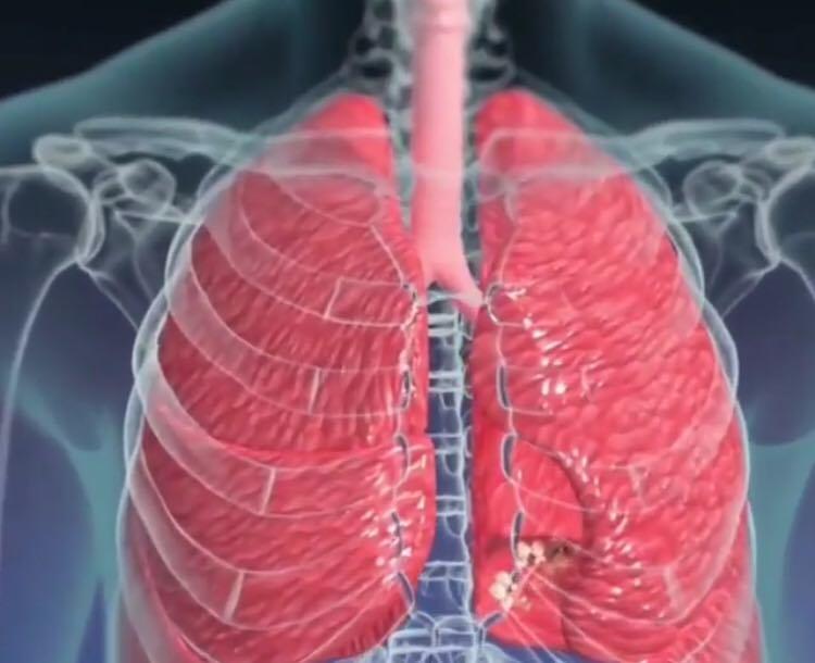 Cancerul de plămâni, diagnosticat și tratat prin înghețare