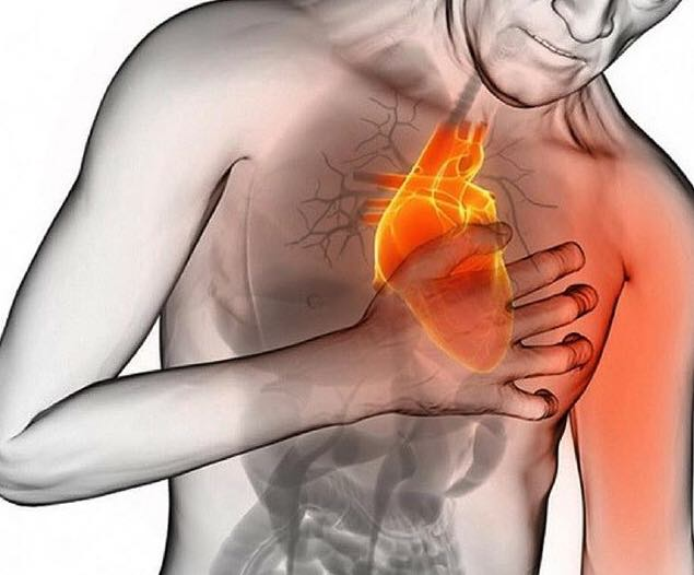 Simptomele unui infarct, explicate de un cardiolog