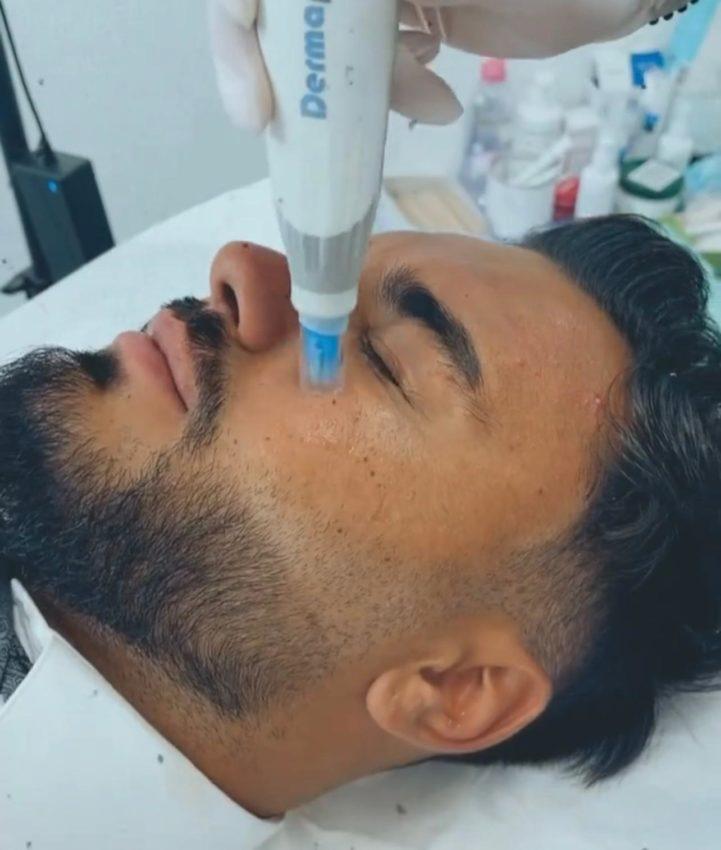 La ce tratament cu microace apelează Jador