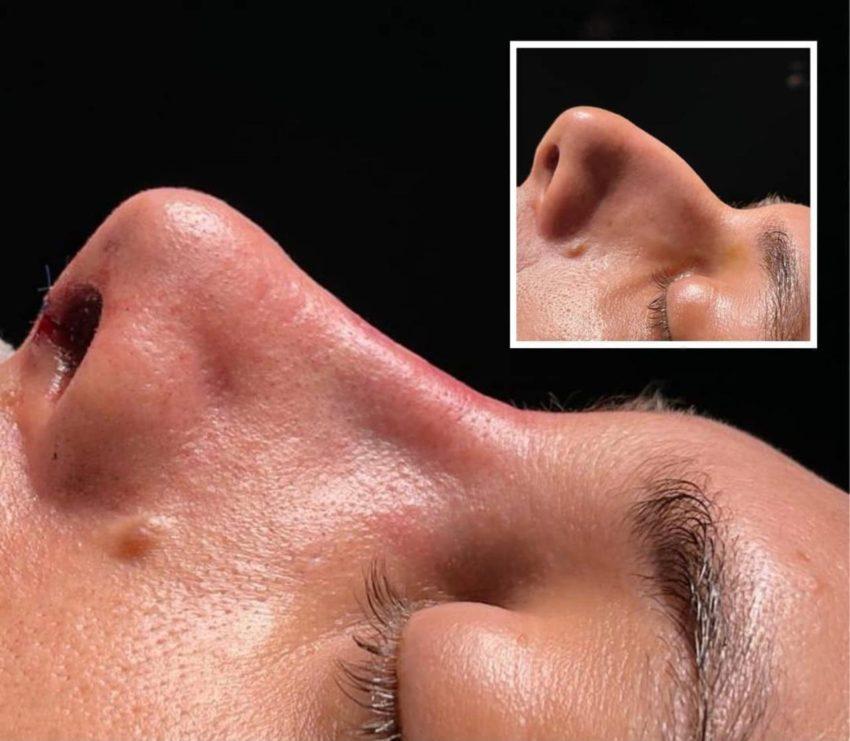 Cu un nas perfect te naști sau… îl creezi!  Despre rinoplastie. O provocare estetică și medicală