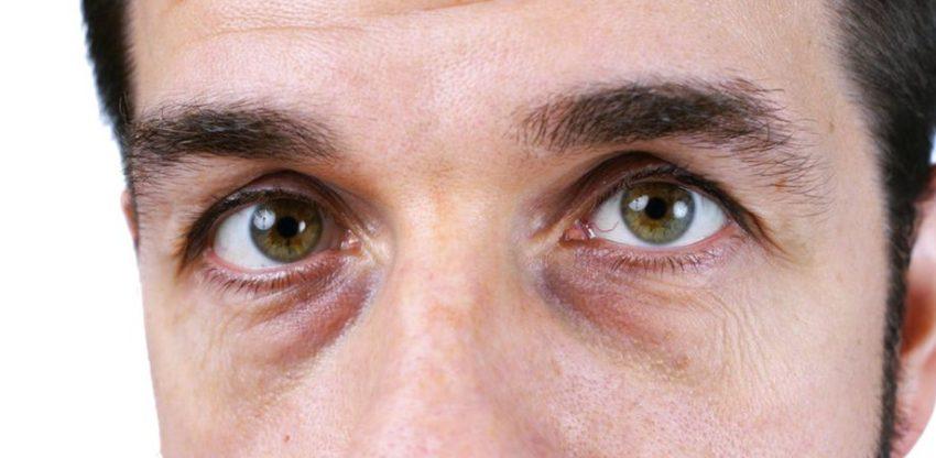 Și bărbații… au cearcăne câteodată, nu-i așa?  Semne care pot trăda probleme de sănătate, dar și cum puteți scăpa de petele cenuşii de sub ochi
