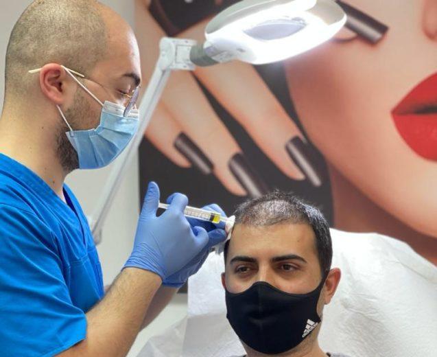 Păr bogat, fără implant!  Procedura PRP tratează căderea părului!